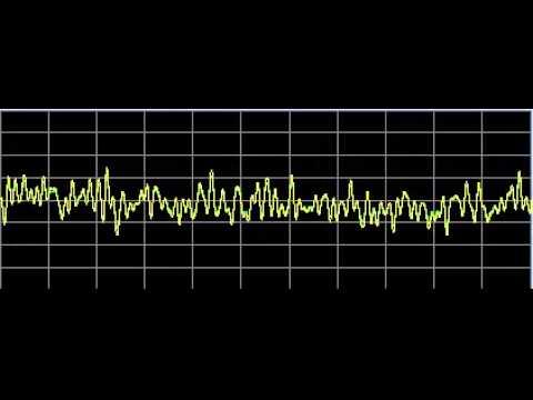 Metabolism Repair - Rife Frequencies