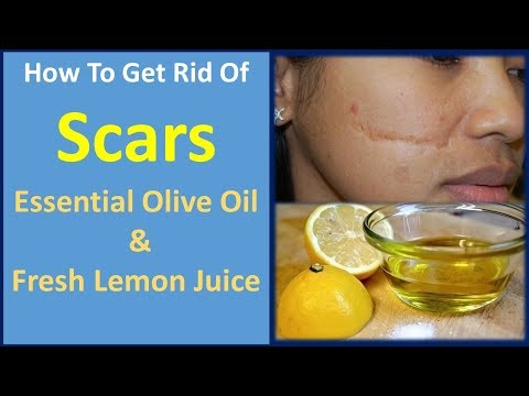 how to get rid of scars   Essential Olive Oil & Fresh Lemon Juice