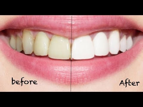 How To Whiten Teeth in 3 Minutes! (No Baking Soda, No Lemon)