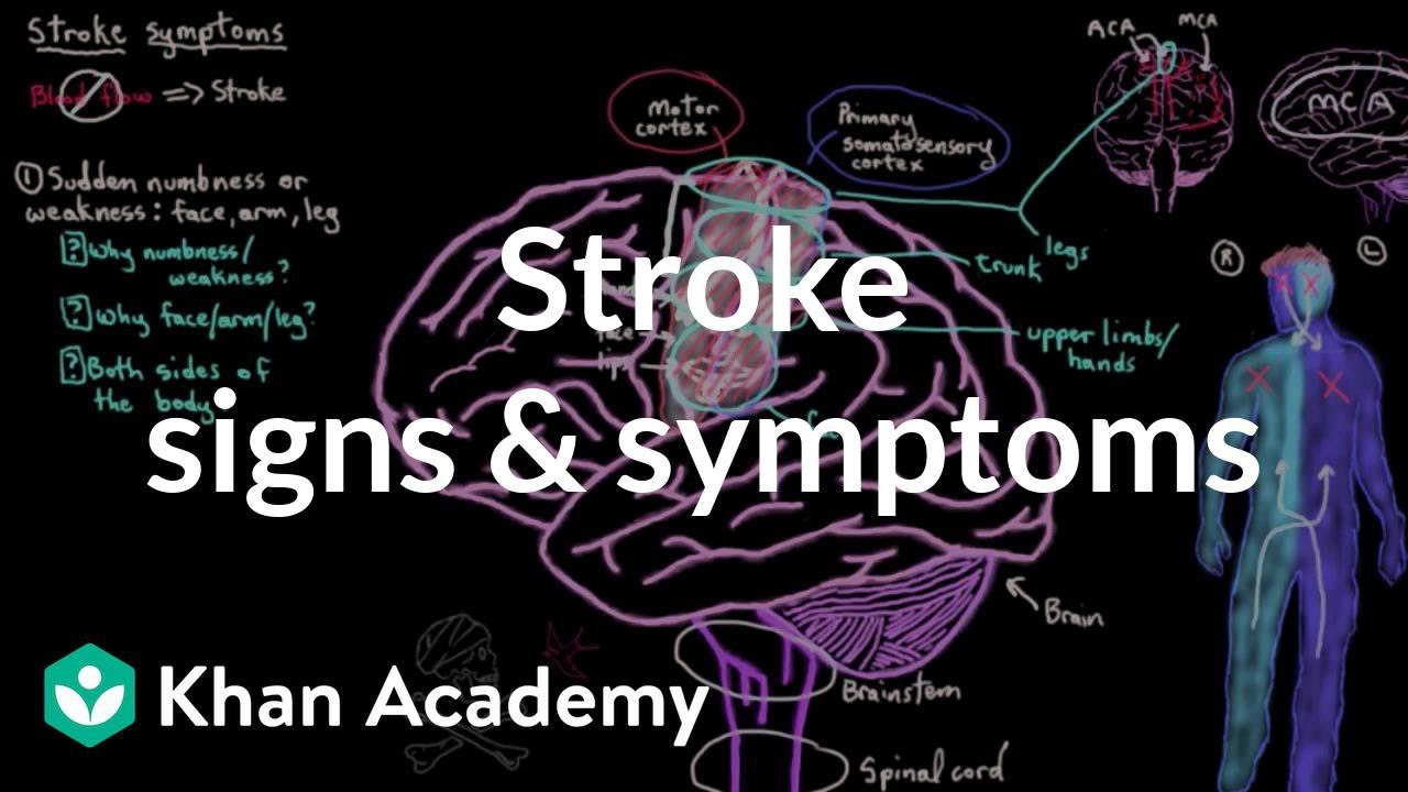 Common stroke signs and symptoms | Circulatory System and Disease | NCLEX-RN | Khan Academy