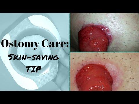 Ostomy care: Healing the Skin around the Stoma