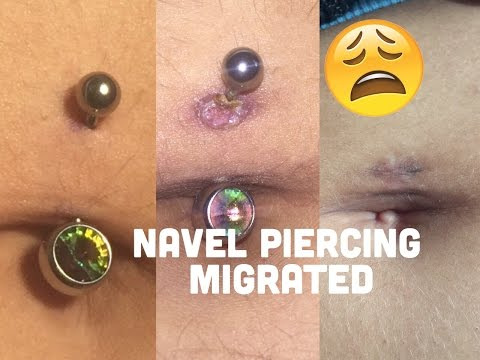 My navel piercing was MIGRATING & I didn't know || Piercing horror story || Elizabeth Kate