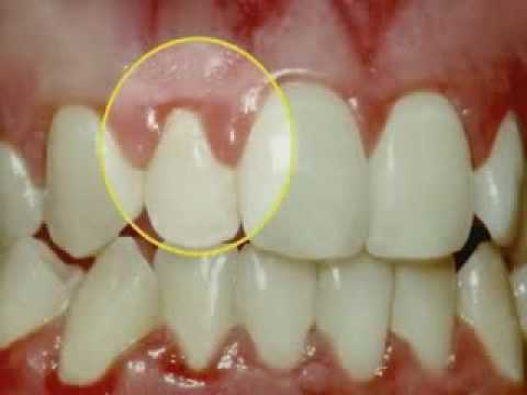 Periodontal Disease & Treatment