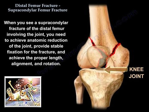 Distal Femur Supracondylar Fracture  - Everything You Need To Know - Dr. Nabil Ebraheim