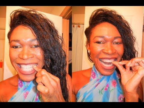 {#158} HOW TO PUT ON ESSIX RETAINERS  ~ REMOVABLE RETAINERS ~