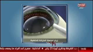 زراعة العدسات لمرضي قصر النظر الشديد | دكتور أشرف سليمان برنامج #الدكتور القاهرة والناس