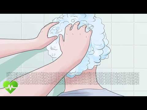 How to Treat Head Lice | how to remove nits from hair fast