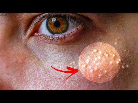 7 Remedies to Get Rid of Milk Spots Overnight - How to Get Rid of Milia Naturally at Home !!