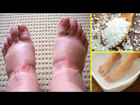 I Had Swollen Feet Everyday, Until I Discovered This Home Remedy That Worked Wonders!