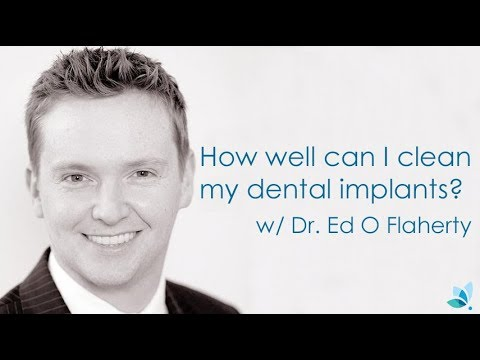 How well can I clean my dental implants?