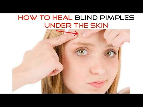 How to Heal Blind Pimples Under the Skin