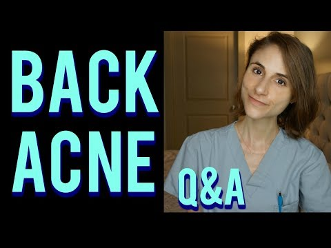 Back acne Q&A with a dermatologist: skin care tips