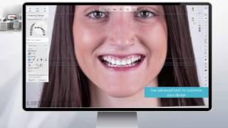 3Shape TRIOS MOVE - PakVim net HD Vdieos Portal