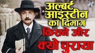 आखिर क्यों चुराया गया अल्बर्ट आइंस्टीन का दिमाग? उसमे क्या था खास?  Who stole Einstein's brain