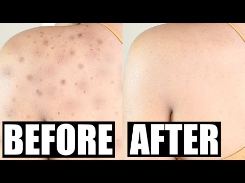 How To Get Rid of Acne Scars Permanently | SKINovative Demo + Review! | BeautybyGenecia