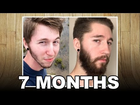 Minoxidil Beard - MONTH 7 - The Experiment