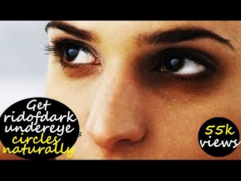 How to get rid of Dark circles Under Eyes - Natural Home Remedies