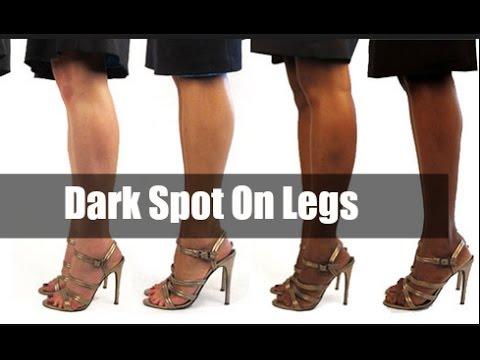 Dark Spots On Legs : How To Remove Dark Spots From Legs