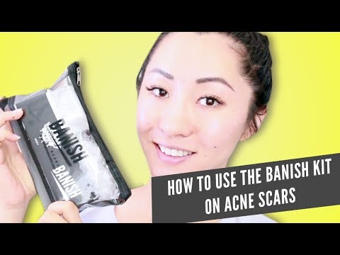 How to Use the Banish Kit
