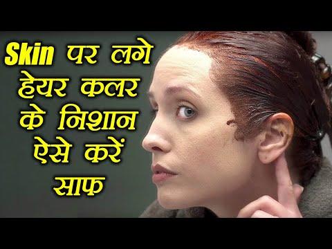 Skin पर लगे हेयर कलर के निशान ऐसे करें साफ, How to get hair dye off your skin | Boldsky