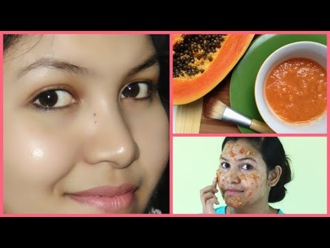 how to get healthy, glowing,spotless skin fast,/ best face pack for dry skin.