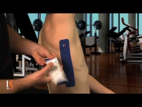KT Tape: Rib Pain