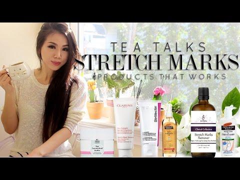 TeaTalk| Stretchmarks