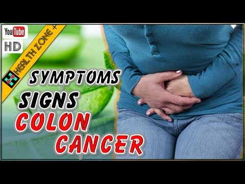Symptoms and Signs of Colon Cancer You should know Early