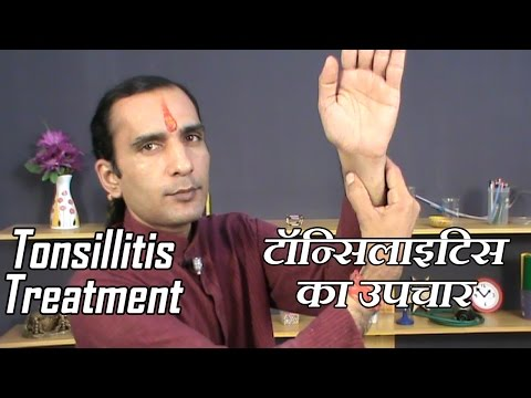 Tonsillitis Treatment - How To Cure Tonsillitis At Home Without Medicine (Hindi) by Sachin Goyal