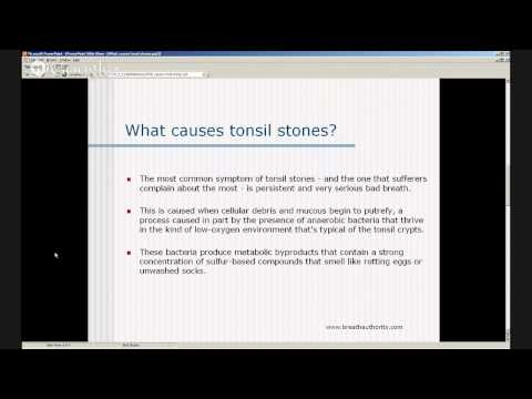 Tonsil Stones Causes - What Causes Tonsil Stones?