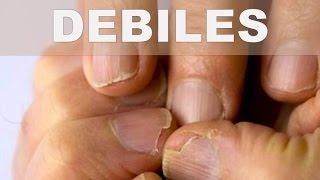 remedio casero para endurecer las uñas débiles