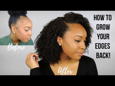 Why I Had Thin/Bald Edges & How I Grew My Edges Back!   Tips to Grow Fuller Edges FAST!!!