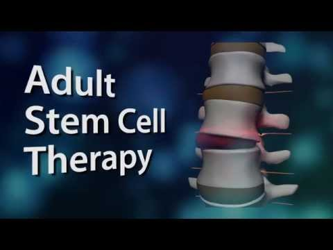 What is Stem Cell Therapy- Trinity Spine and Wellness Center New Port Richey