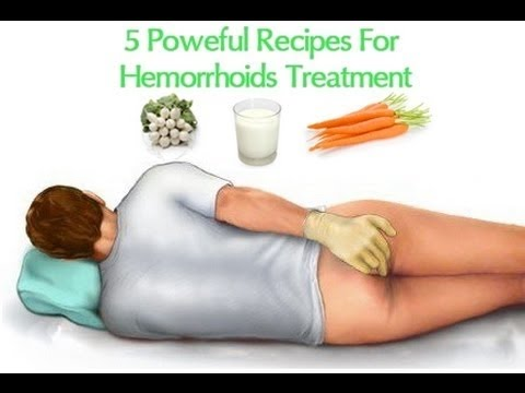 How to Get Rid of Hemorrhoids | Cure Hemorrhoids Naturally
