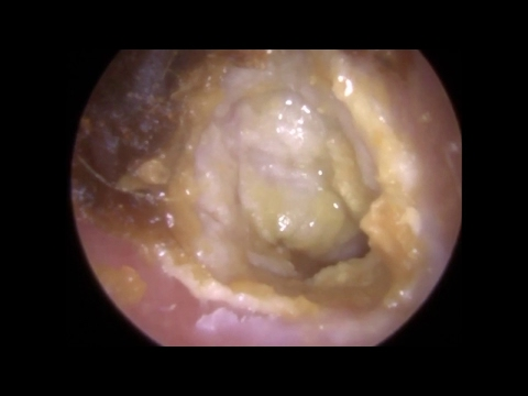 194: Eardrum about to 'EXPLODE' revealed after Ear Wax Removal - Mr Neel Raithatha (THC)