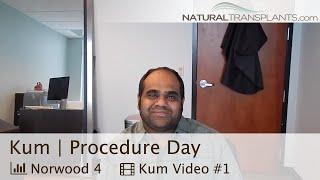 Hair Loss Cure 2018| Hair Loss Cure For Men Procedure (Kum)