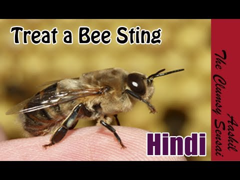 How to Treat a Bee Sting in Hindi