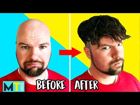Men Try Non-Surgical Hair Replacements & Wigs - Before and After!