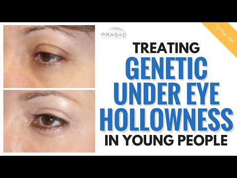 The Cause of Under Eye Hollowness in Young People, and How it Can be Treated