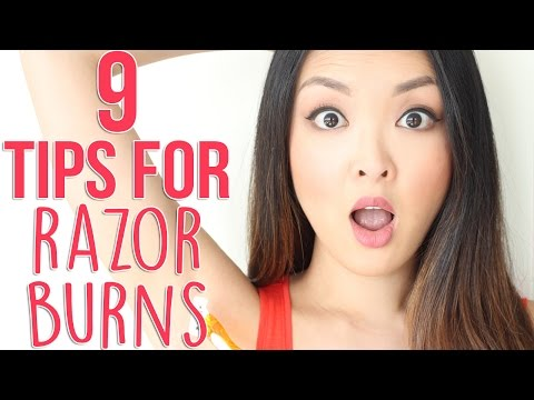 HOW TO: Prevent and Get Rid Of Razor Burns!