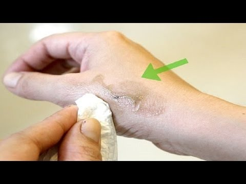 How To Remove Dye From Skin - Using Home Remedies.