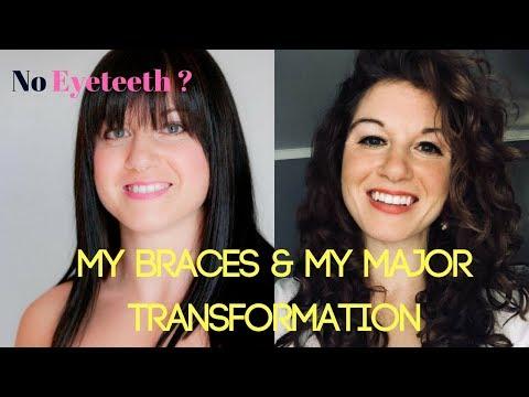Major Braces Transformation: 6am stories (no eye teeth)