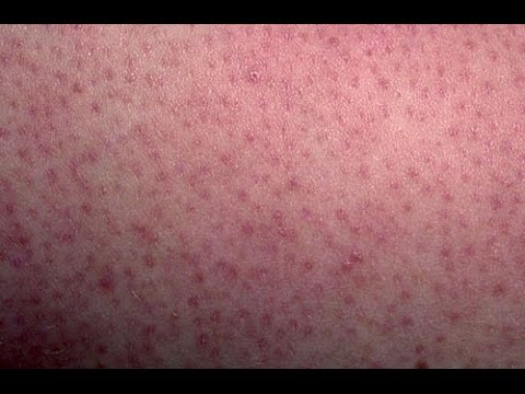 HOW TO GET RID OF CHICKEN SKIN ON ARMS, THIGHS AND BUTT: KEROTOSIS PILARSIS DML style