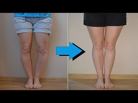 knock knees- how to fix knock knees with exercises - correct knock knees without surgery