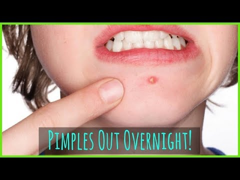 How To Get Rid Of Pimples || Acne Overnight Fast