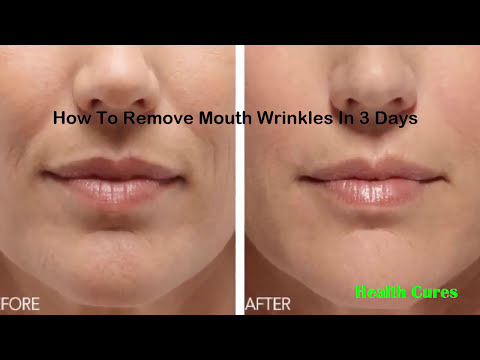 How To Remove Mouth Wrinkles In 3 Days ! Inexpensive Ways to Get Rid of Deep Wrinkles Around the Mou