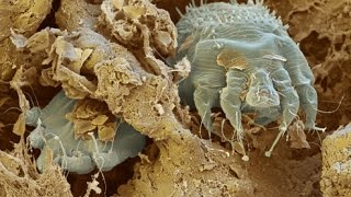 Where Does Scabies Come From How To Get Rid Scabies Rash Natural Cure