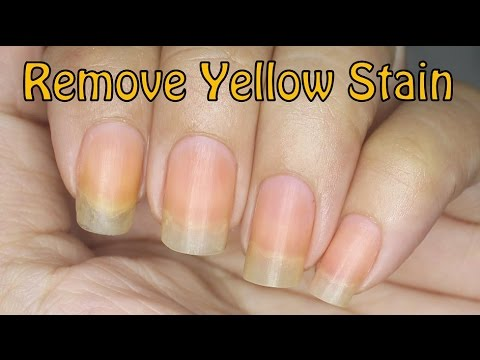 How to Remove Yellow Stain on Nails!