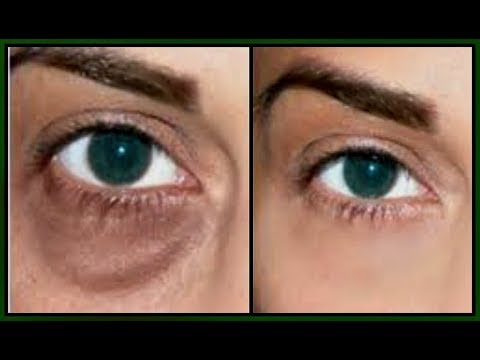 QUICK FIX FOR UNDER EYE BAGS, DARK CIRCLES PUFFY EYES AND TIRED EYES The result is amazing Khichi Be