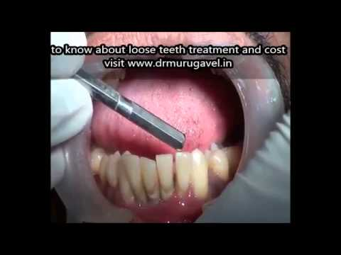 shaky teeth due to gum weakness!!video!